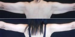 Arm Lift *