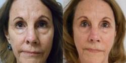 Nasal Surgery Revision*