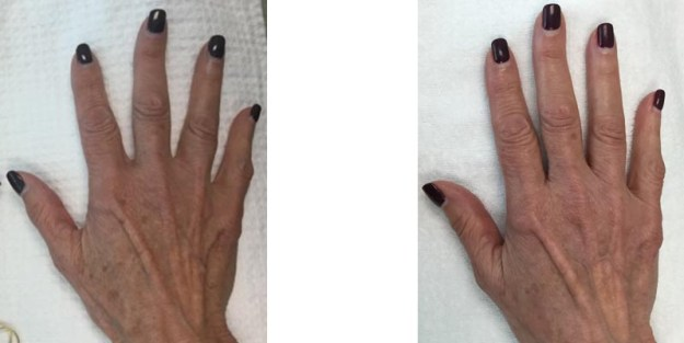IPL Photofacial: Hands *