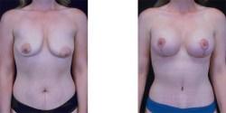 Lipo-Abdominoplasty *