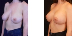 Silicone Breast Implant Revision *