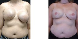 Breast Reconstruction Revision *