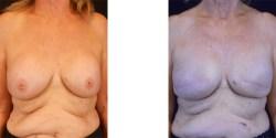 * Breast Reconstruction
