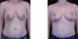 Lipo-abdominoplasty/Mommy Make-Over*