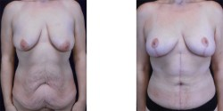 Abdominoplasty - Fleur de Lis *