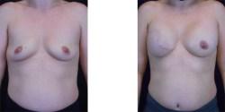 Breast Reconstruction *