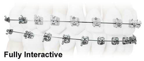 Welcome to Reznik Orthodontics in Midland and Odessa, Tx