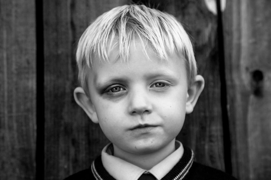 Black Eye © Jamie Johnson