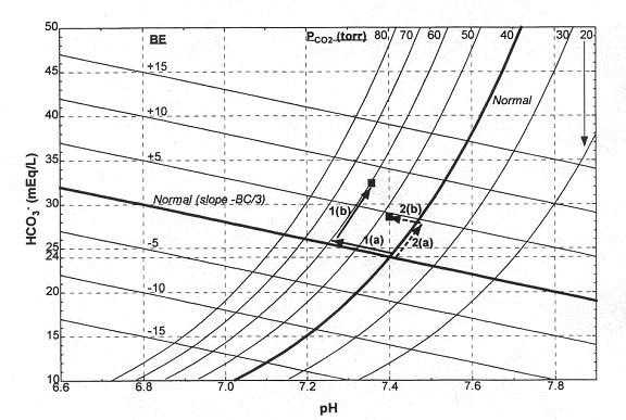 rfumsphysiology / Acid-Base Balance-A Respiratory Approach