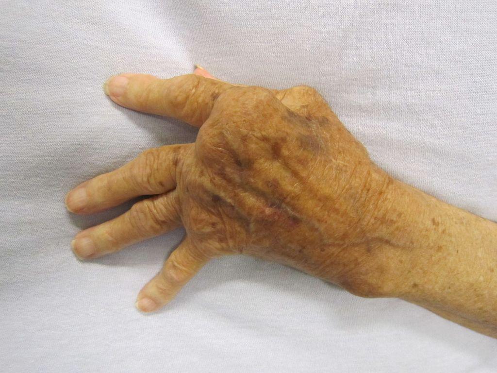 Untreated rheumatoid arthritis