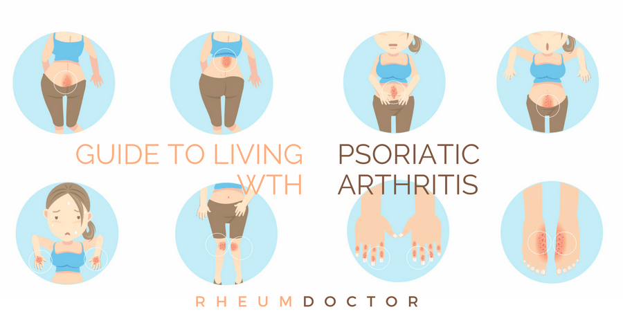 Psoriatic arthritis is an autoimmune disease that not only affects skin, but also joints
