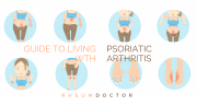 Guide to living with psoriatic arthritis: Part 1