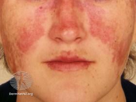 Malar rash from DermNet NZ