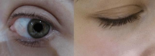 eyelash growth