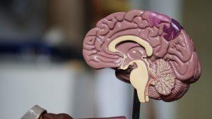 model of human brain, what is wet brain