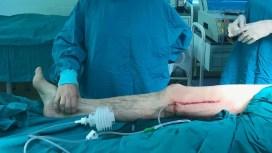 Врачи центра спасения конечностей сохранили ногу пациенту