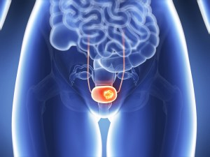 Bladder Cancer Treatment in Aventura FL