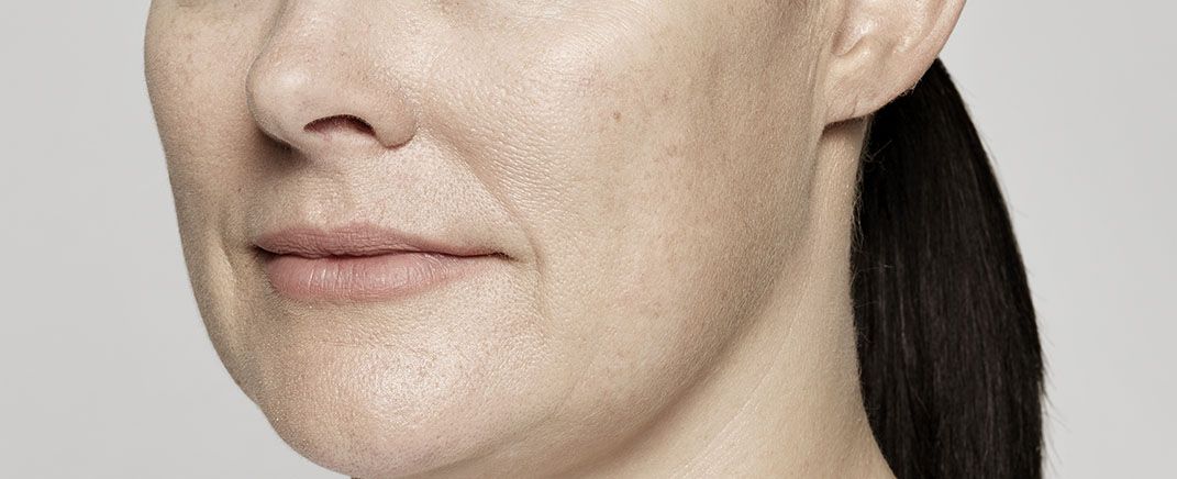 anti wrinkle treatment after