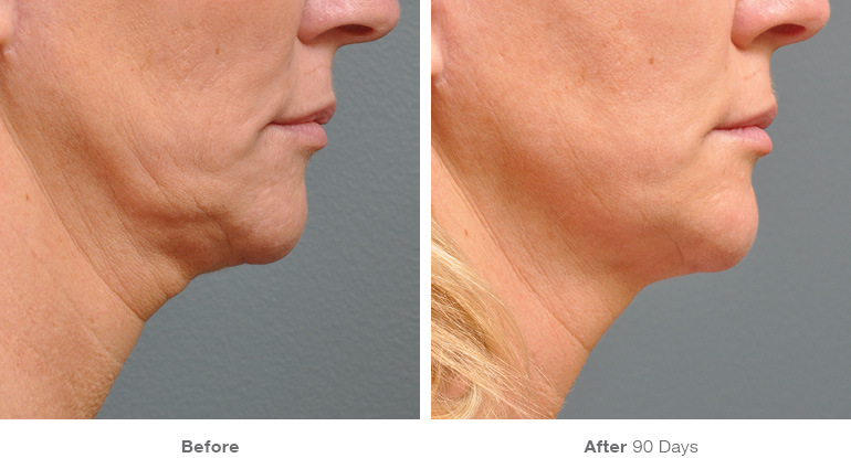 Ultherapy-000P-042Y_0Day-90Day-1TX_BEFOREAFTER_Full