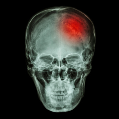 Left side concussion injury