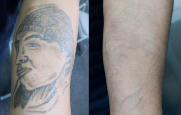 San Pablo EDC offers low-cost tattoo removal | Richmond ...
