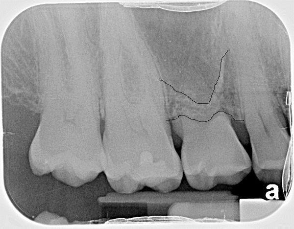 Bone Grafts In Dentistry The Bone Sets The Tone  Bite Point