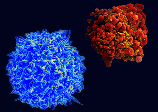 View of a normal (left) and HIV-infected (right) T cell; Image courtesy of NIAID
