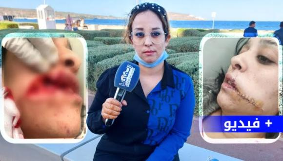 """شابة تطالب بتدخل """"الحموشي"""" بعدما قام خطيبها السابق بتشويه وجهها ببني انصار (فيديو)"""