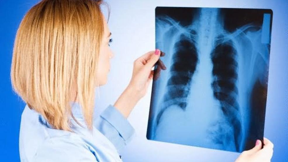دراسة: مغربيات بلجيكا يصبن بسرطان ثدي أكثر خطورة وفي سن مبكرة.. هل له علاقة بالغازات السامة