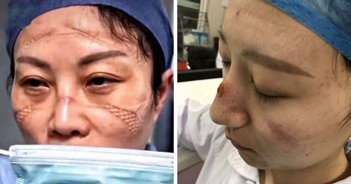 chinese-nurses-face-masks-corona-virus-fb14-png__700