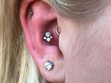 conch piercing scar