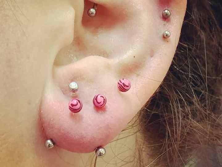 ear transverse lobe
