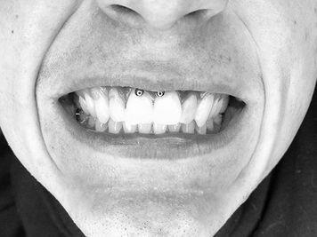 image of lip frenulum piercing