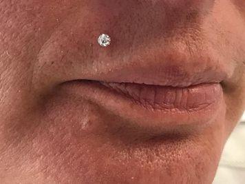 madonna piercing healing time