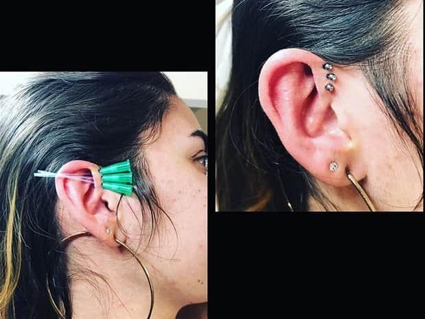 procedure triple forward helix piercing