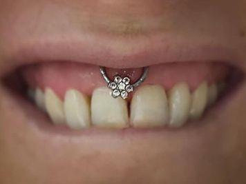 lip frenulum piercing cbr