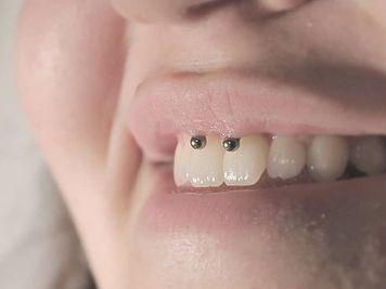 smiley piercing fangs