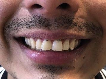 smiley piercing gap teeth