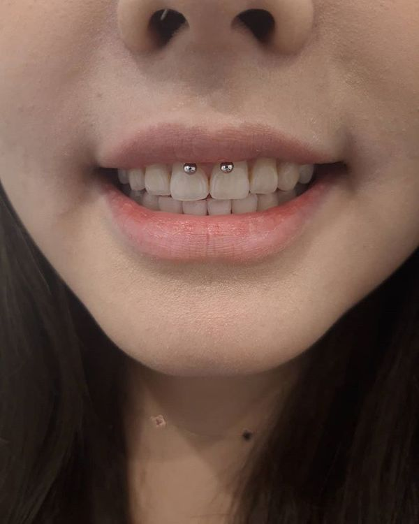 smiley piercing with braces