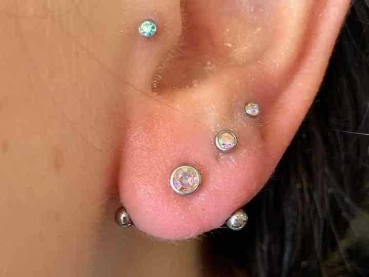 transverse earlobe