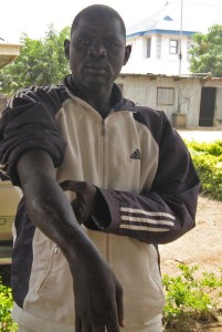 Scars-on-Adamu-Musa-shot-by-Boko-Harm-in-attack-on-I-Gava-West-village-Gwoza-Borno-state-in-2013.-Morning-Star-News-201x300