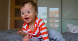Govt offer new travel incentive for late-term disability abortions including cleft lip and Down's syndrome in England