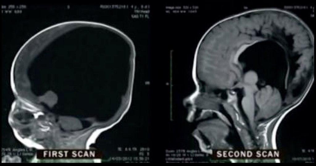 noah brain scan