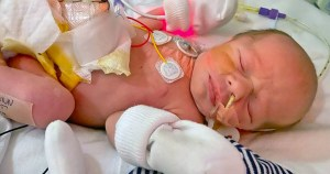 'Miracle baby' survives after mother refused abortion