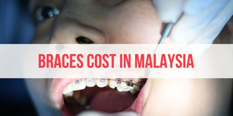 Braces Price in Malaysia: Private and Government Braces (+How to Apply)