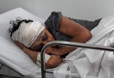 Após assalto, idosa de 81 anos espancada por bandidos morre no MA