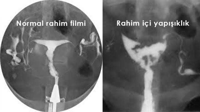 Rahim-içi-filmi-görüntüsü-normal-anormal