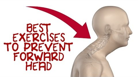 Top 5 Exercises to Fix Forward Head Posture