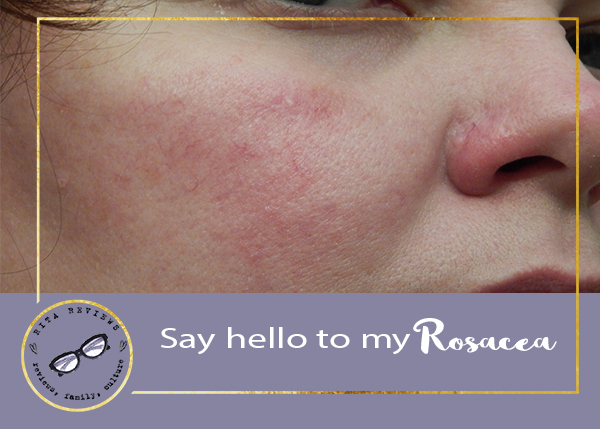 No Need to Worry, Lots of People Have Rosacea!