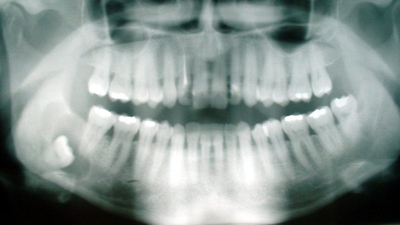 Wisdom tooth growing outwards